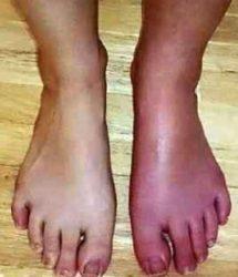 複合性局所疼痛(とうつう)症候群